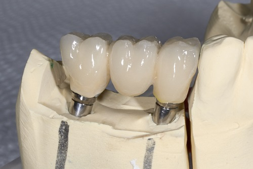 Replace Dentures with Dental Implants