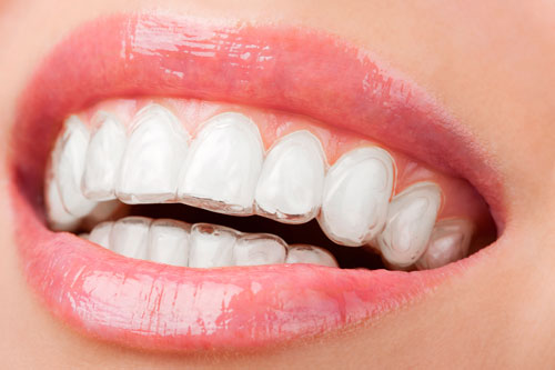 Why Invisalign is a Hit