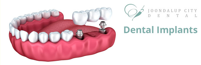 Dental Implants Perth