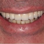 perth dental implants after photo