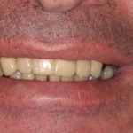 perth dental implants before photo