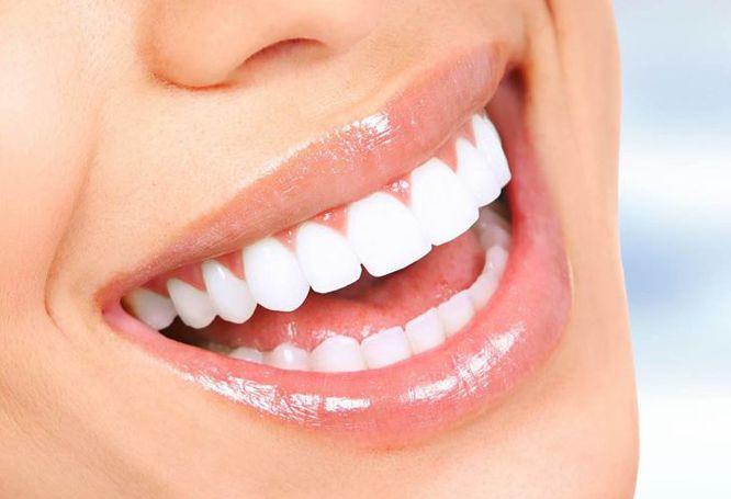 All-on-4™ Dental Implants